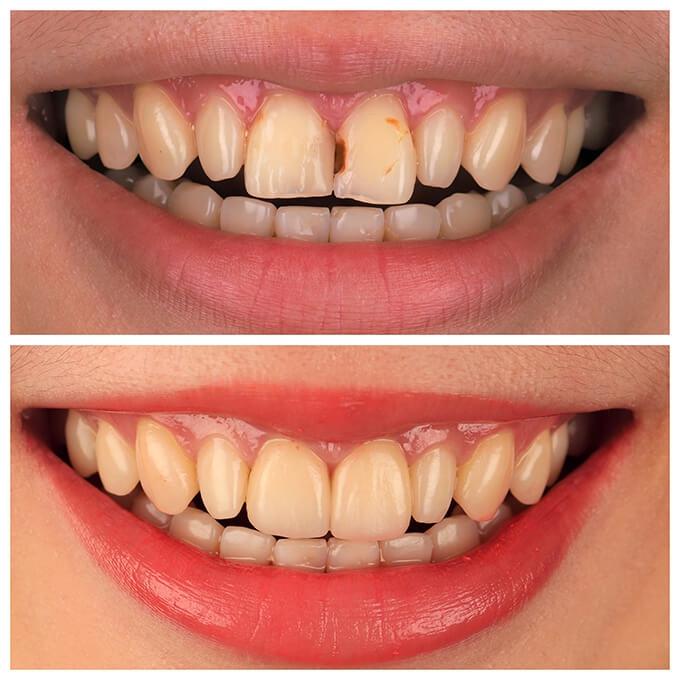 <P ALIGN=LEFT>[李小姐]</p>主訴:門牙蛀掉補過很多次,不美觀