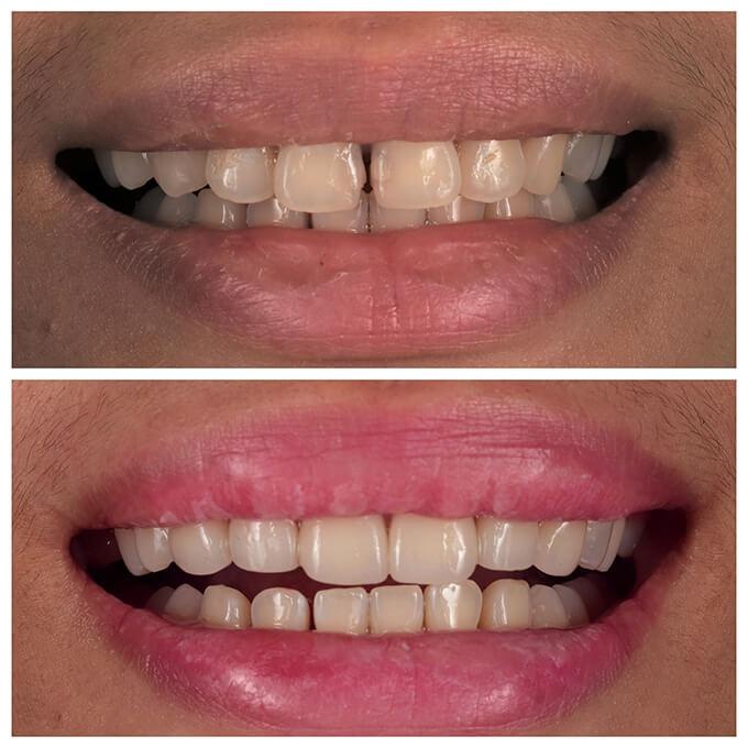 <P ALIGN=LEFT>[張小姐]</p>主訴:門牙有縫隙及齒色黃