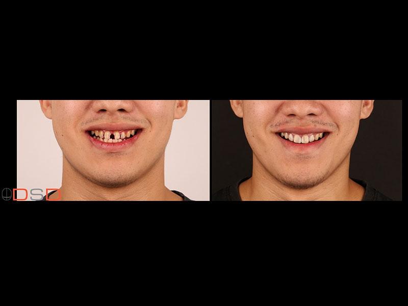 牙縫過大,對牙齒形狀不滿意