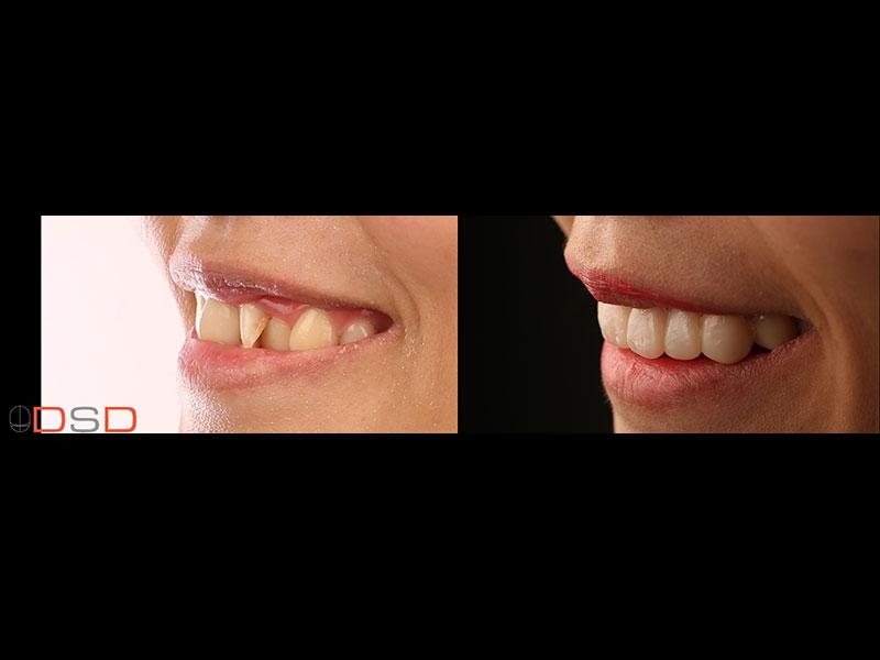 笑齦,笑的時候牙齦比例不平衡